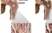 What is Bone Density?