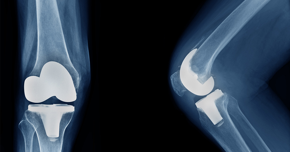 X-ray showing joint replacement in knee