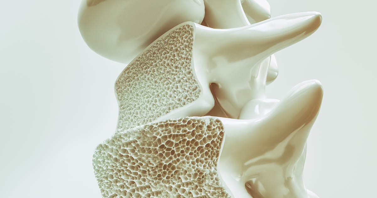 Osteoporosis Risk Factors
