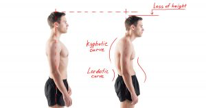 Chart showing man with curved back and loss of height